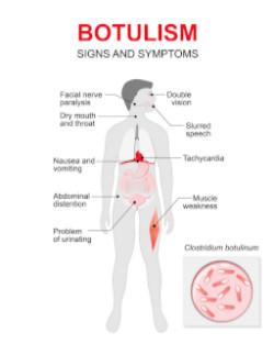 Botulismus Symptome