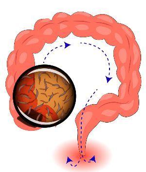 Enterobiasis behandlung - Human papillomavirus may cause